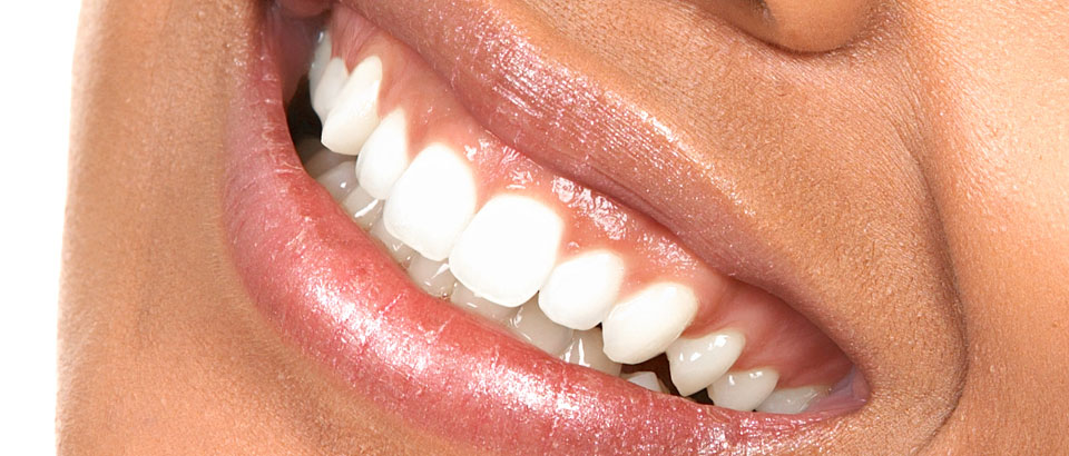 Cosmetic Dentistry in St. Pete for a Winning Smile