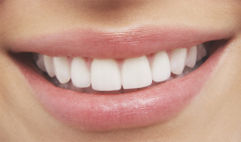 St. Pete Dental Office Offers Bright Smiles