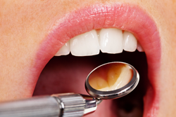 regular check ups can prevent gum disease