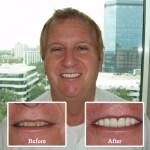 St. Petersburg Dental Office Testimonials