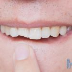 how-to-treat-a-chipped-tooth