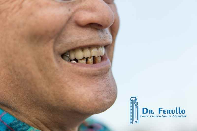 causes-of-tooth-loss