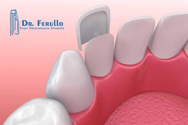what-are-dental-veneers