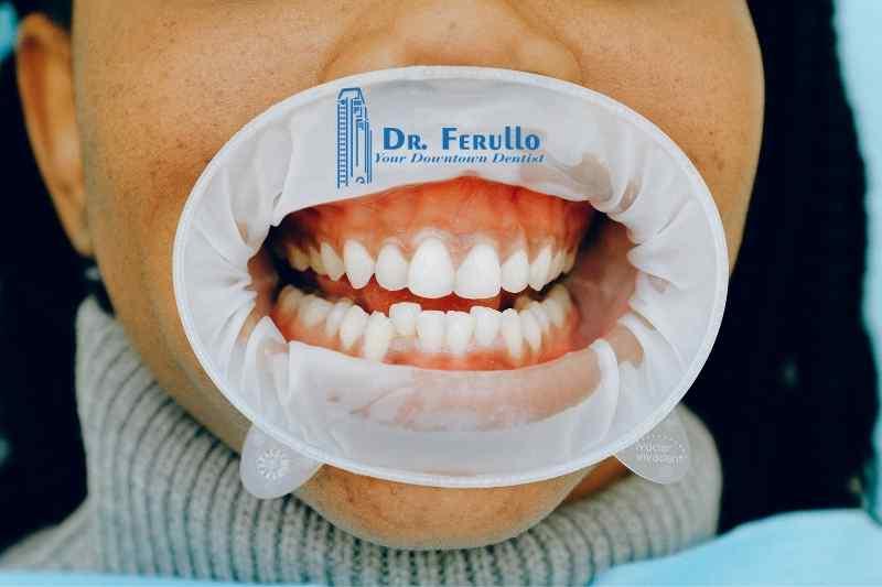symptoms-of-periodontitis